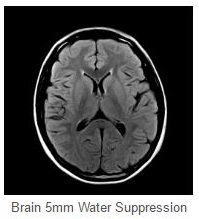 Brain 5mm Water Suppresion